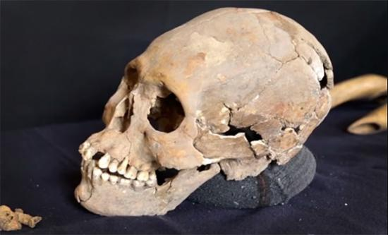 Elongated skull of the Lady of Tlailotlacan