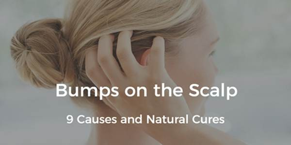 Bumps On Scalp 9 Causes And Natural Treatments Daily