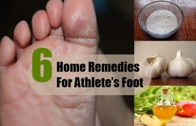 treat athletes foot naturally