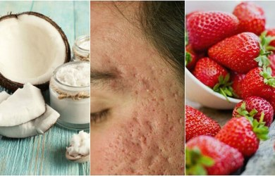 Reduce Acne Scars Naturally