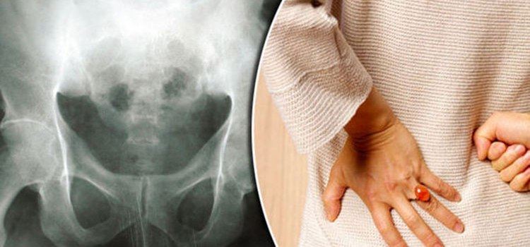 Prevent Osteoporosis Naturally