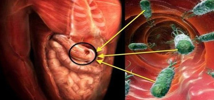 Herbal Remedies for Helicobacter Pylori Infection