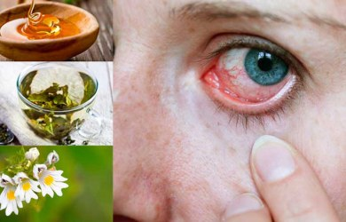 Natural Remedies for Eye Infections