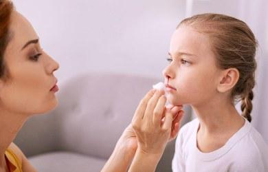 Prevent Nosebleeds in Children