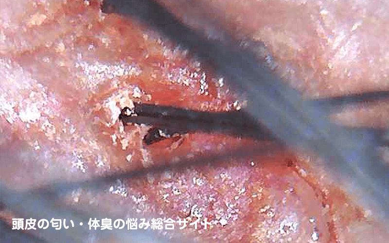 【閲覧注意】頭皮ニキビ・脂漏性皮膚炎の頭皮写真