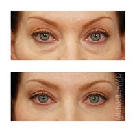 eye11 front th - Cantopexia, la Cirugía que Rasga los Ojos