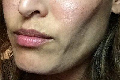 userimage 1368562 - Ultherapy, el Lifting Sin Cirugía de Hollywood