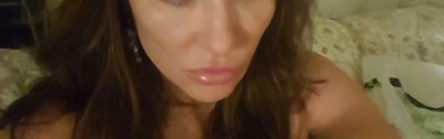 userimage 957552 - Ultherapy, el Lifting Sin Cirugía de Hollywood