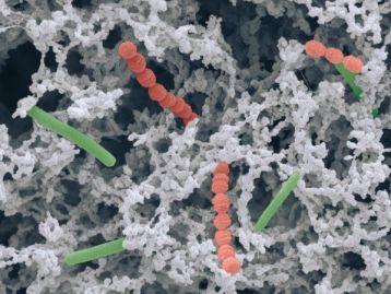 οξυγαλακτικά βακτήρια 6