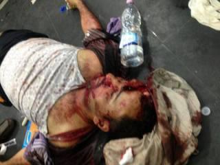 salah satu korban kekejaman militer subuh tadi