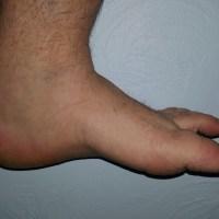 Dr. D's Wicked Fantastic Foot Soak