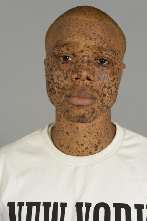 FACES - FRECKLES - DAMIAN BAO CASTING - 00007