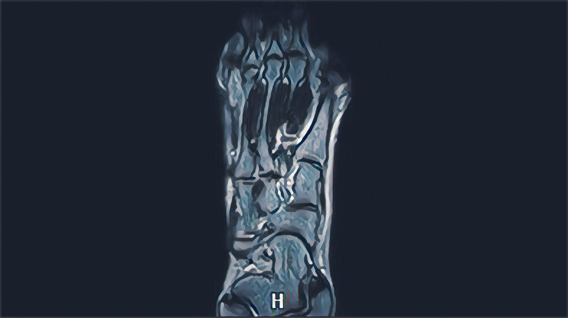■イカ足MRI測定希望者募集 残1名