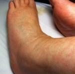Amantadine can cause Livedo Reticularis
