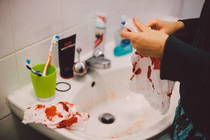 Kat's nosebleed