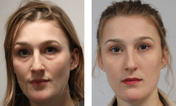 Before and After Eyelid Treatment by a UK Eyelid Surgeon ...