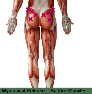 Myofascial release - Glutes