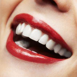 Teeth Whitening in Rigby