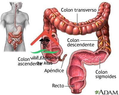 اعراض سرطان القولون وكيفية علاجة