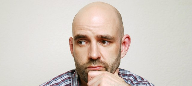mistakes hair transplant