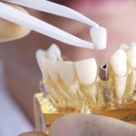 Preserve a Healthy Smile with Periodontal Maintenance