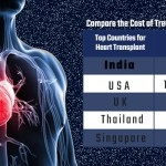 Avail the Best Heart Transplant in India