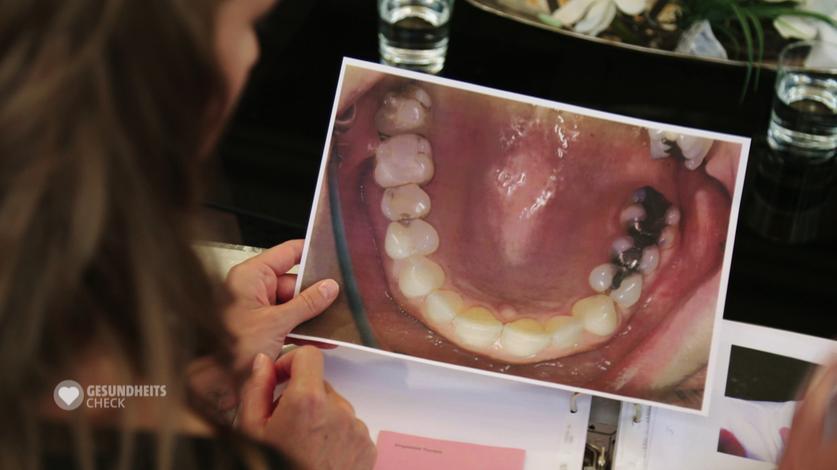 Bild von Zähnen mit Füllung