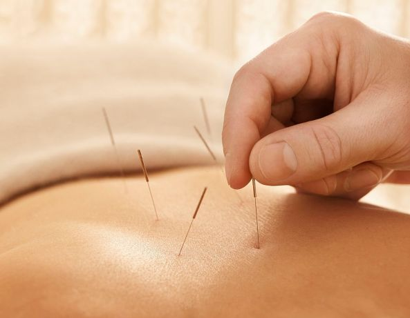 Prostate-Pain-And-How-Acupuncture-Can-Help-You-1