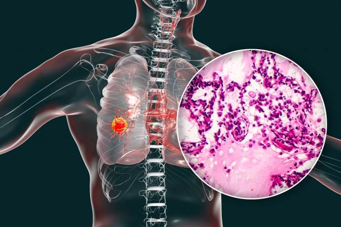 Why-COVID-Pandemic-Has-Made-Early-Detection-Of-Lung-Cancer-A-Challenge
