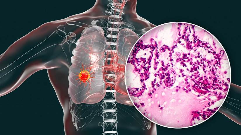Why COVID Pandemic Has Made Early Detection Of Lung Cancer A Challenge?