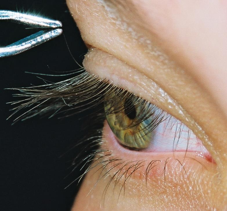 Jalene S Beautiful Heterochromic Eyes