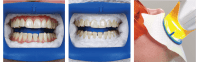 Zoom Whitening - What is the Process and How Does it Work?