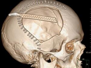 A Michael McEwan fu rimossa una parte del cranio