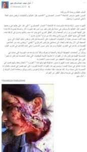 Il post di Amal con la foto della bambina.