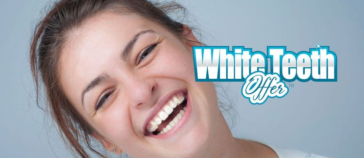Teeth Whitening Offer