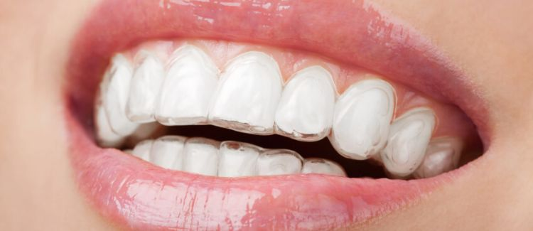 Will My Dental Insurance Cover the Cost of Braces?