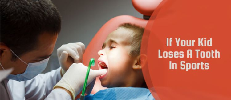 What To Do If Your Child Loses A Tooth While Playing Sports