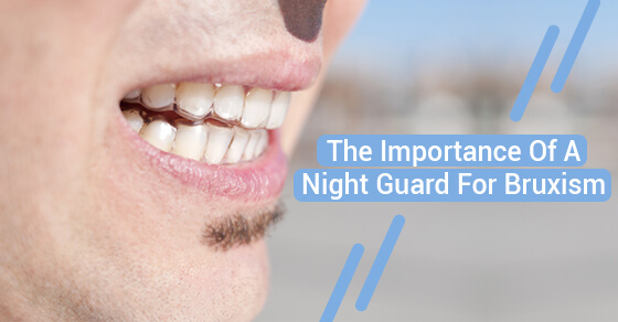 The Importance Of A Night Guard For Bruxism