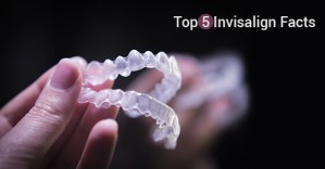 Top 5 Invisalign Facts