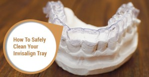 How To Safely Clean Your Invisalign Tray
