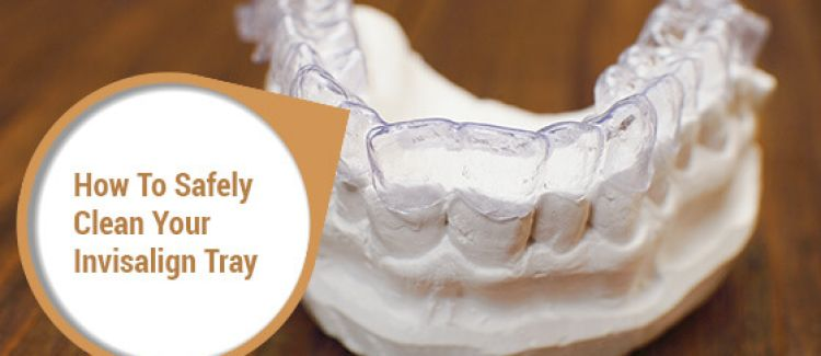 5 Tips For Cleaning Your Invisalign Tray