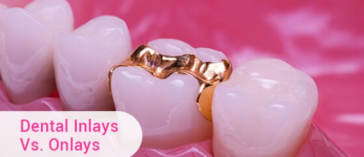 What's The Difference Between Dental Inlays And Onlays?