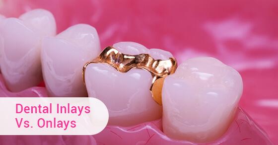 Dental Inlays Vs. Onlays
