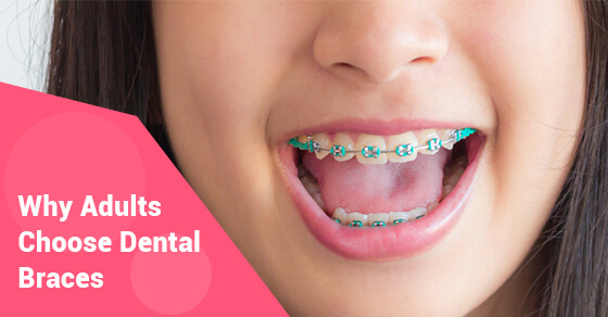 Why Adults Choose Dental Braces