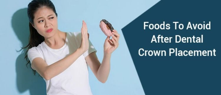 10 Foods To Avoid After Dental Crown Placement