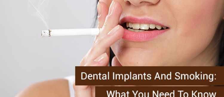 Dental Implants And Smoking: What You Need To Know