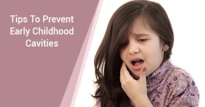 Prevent Early Childhood Cavities