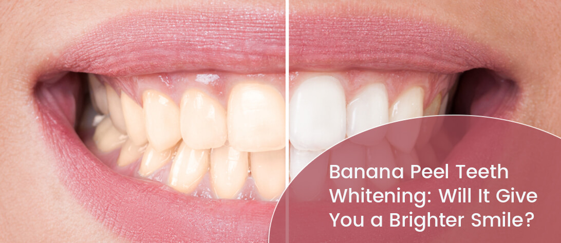 Perfect smile before and after teeth whitening