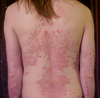 """Psoriasis (/sɵˈraɪ.əsɨs/; from Greek ψωρίασις, meaning """"itching condition"""" or """"being itchy"""", from psora """"itch"""" and -sis """"action, condition""""; also termed psoriasis vulgaris),[2] is a common, chronic relapsing/remitting immune-mediated skin disease characterized by red, scaly patches, papules, and plaques, which usually itch.[2] The skin lesions seen in psoriasis may vary in severity from minor localized patches to complete body coverage. The disease affects 2–4% of the general population."""
