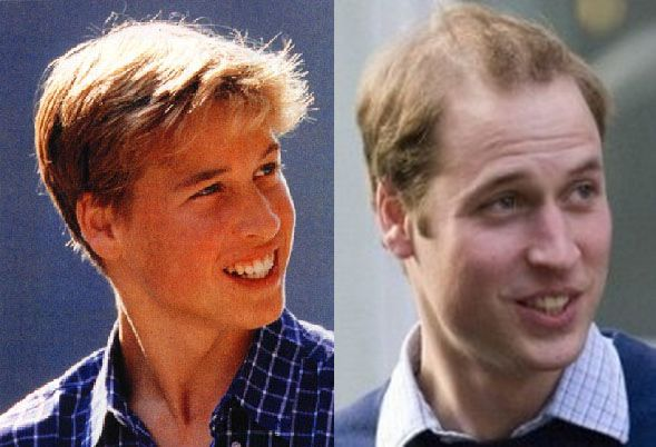 Justin Bieber Slams Prince William:  Hey Not Everyone Can Have Bieber's Sweet Locks